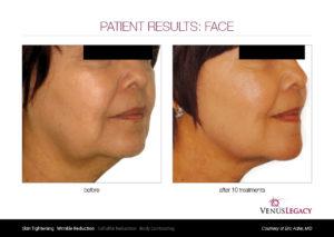 Rejuvenece tu rostro sin cirugía con Venus Legacy