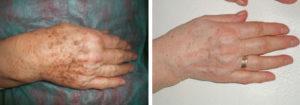 cuida tus manos en nuestro centro