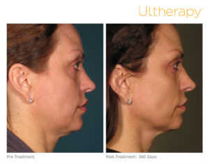 Ultherapy Linfting sin Cirugia
