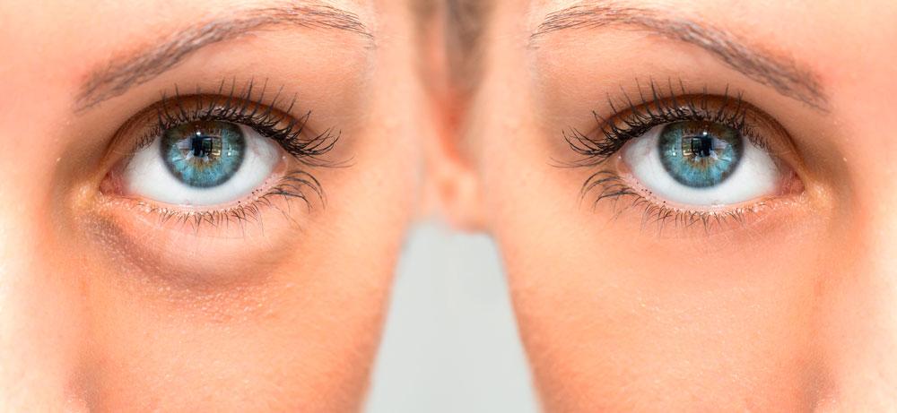 Cómo Eliminar las Bolsas de los Ojos