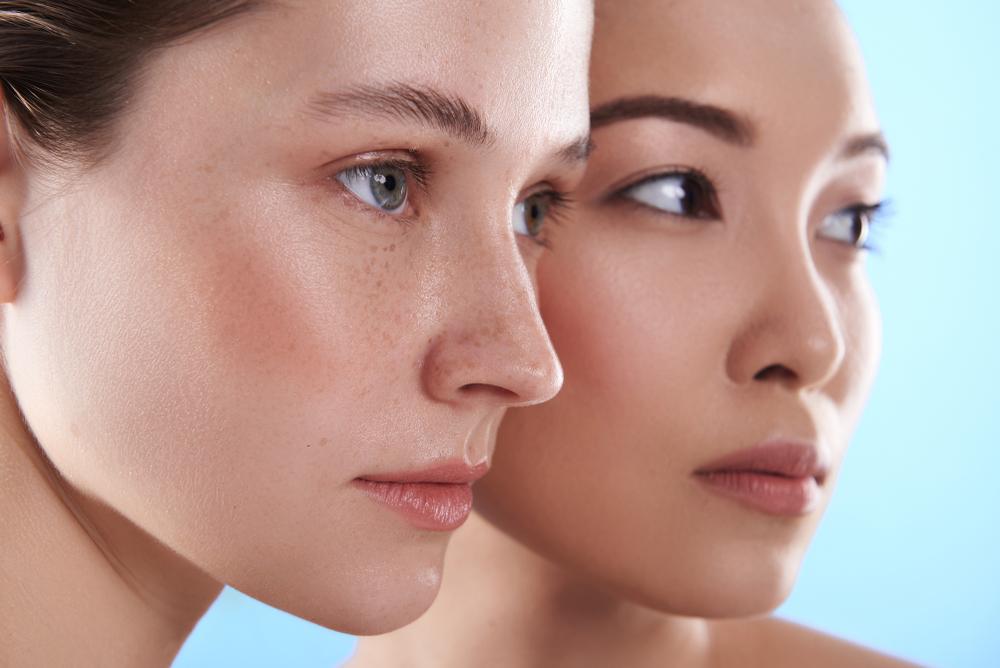 Lifting sin cirugía Ultherapy, detén el tiempo en tu rostro.
